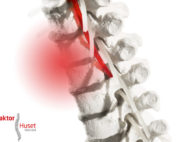 Laserbehandling-Kiropraktorhuset Næstved