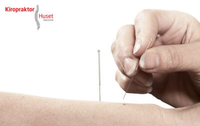 Akupunktur-som-smertelindring-Kiropraktorhuset Næstved