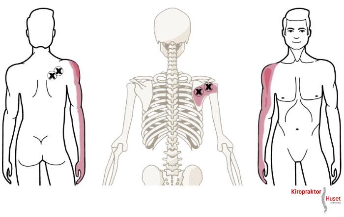 myoser i ryggen